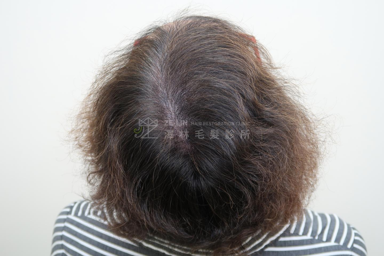 擬真髮頭皮微點染色(SMP)治療頂部分髮線變寬術後