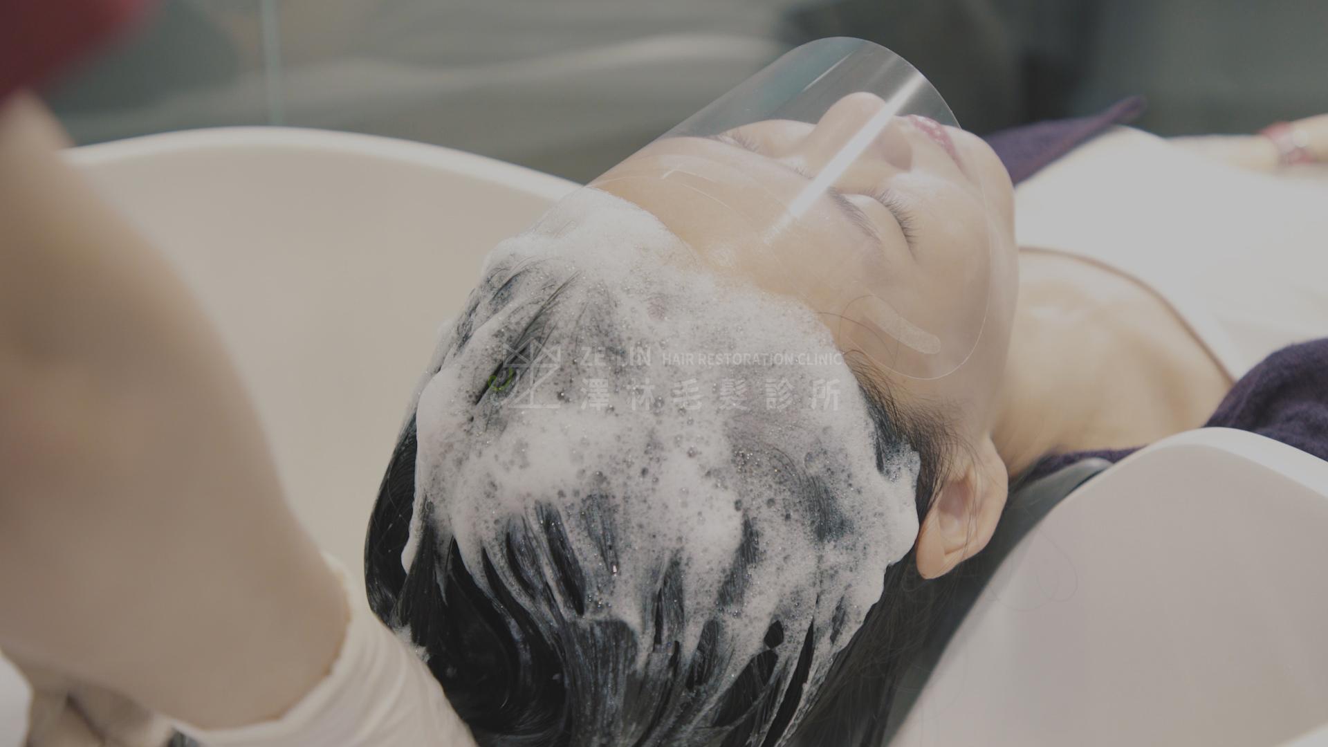 澤林毛髮診所植髮術後洗頭護理1