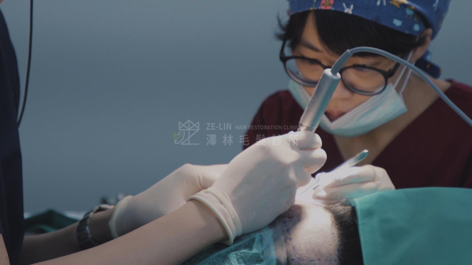澤林毛髮診所FUE植髮手術鑽取