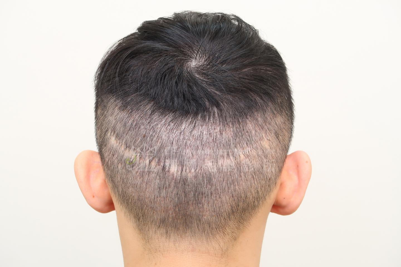 擬真髮頭皮微點染色(SMP)治療FUT手術疤痕術前