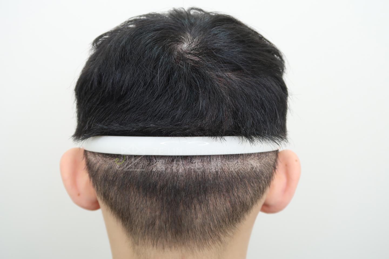 擬真髮頭皮微點染色(SMP)治療FUT手術疤痕術後
