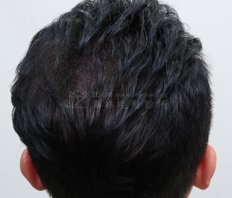 擬真髮頭皮微點染色(SMP)合併植髮手術治療案例術後
