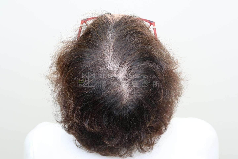 擬真髮頭皮微點染色(SMP)治療頂部分髮線變寬術前