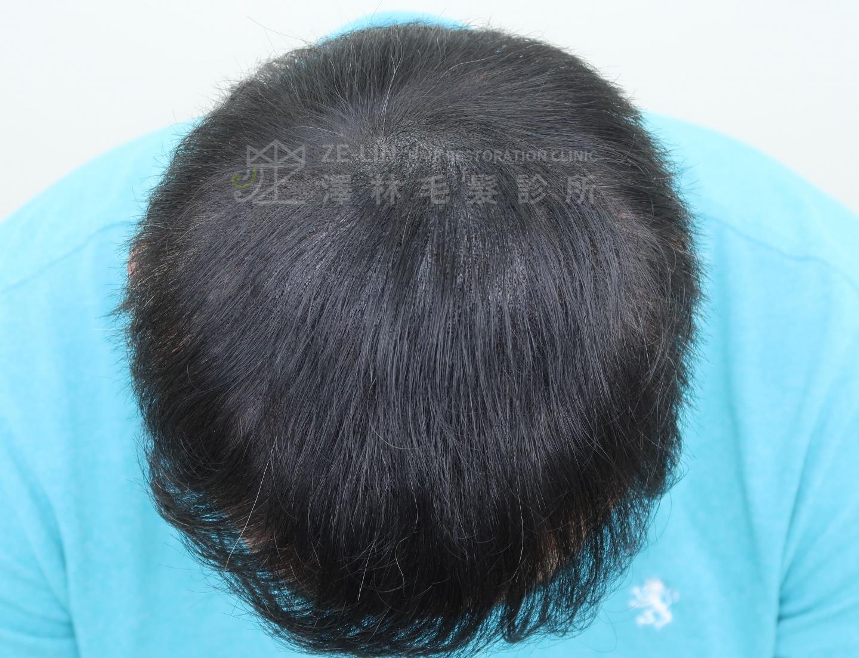 頂部大範圍雄性禿無法進行植髮手術者接受擬真髮頭皮微點染色(SMP)治療術後