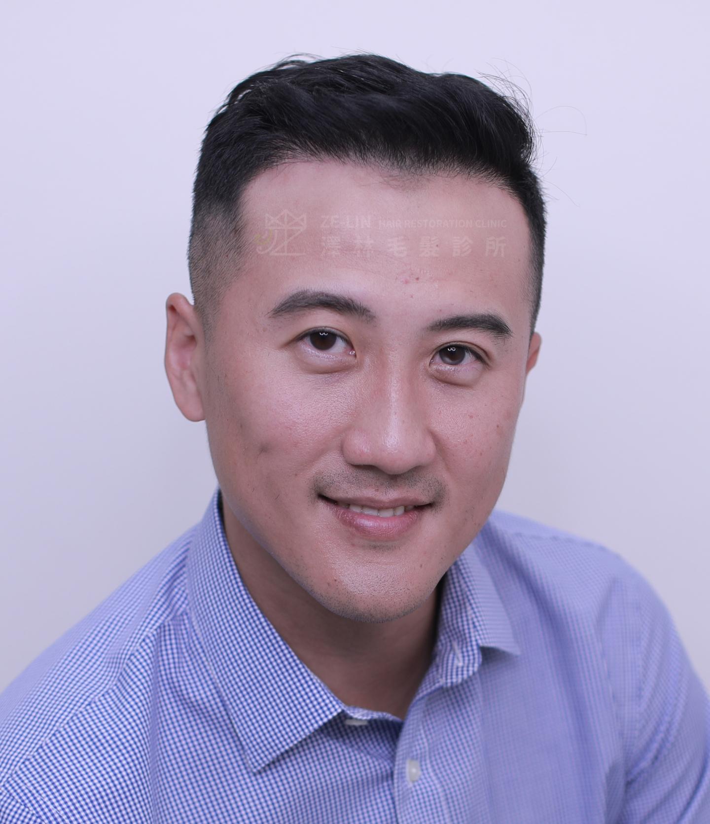 M型禿植髮案例:術後正面