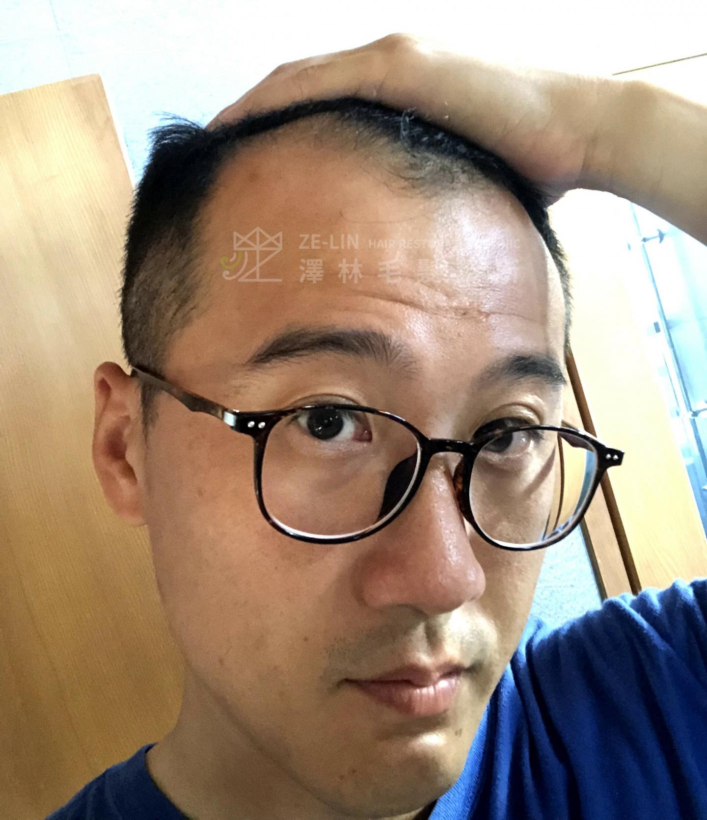 M型禿植髮案例:術前髮際線