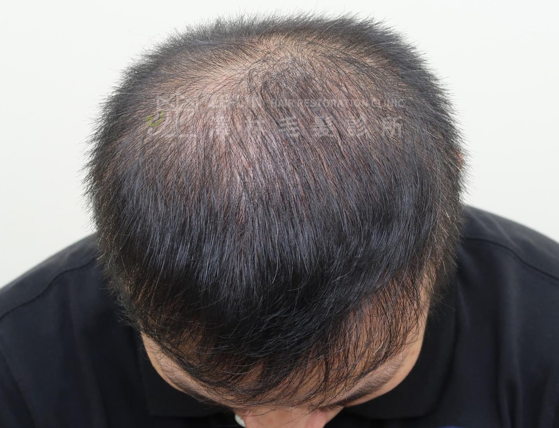 頂部大範圍雄性禿無法進行植髮手術者接受擬真髮頭皮微點染色(SMP)治療術前