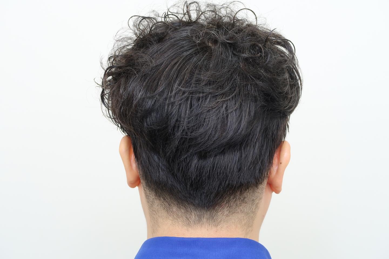 FUE植髮手術後隔天