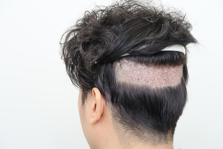 局部剃髮FUE植髮