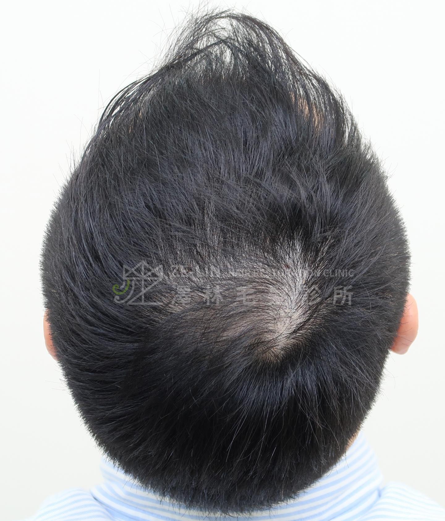 生髮育髮治療PRP自體生長因子注射治療雄性禿頂部及旋前術前2