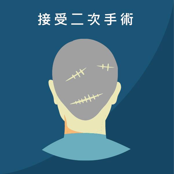 二次植髮採用FUE植髮手術