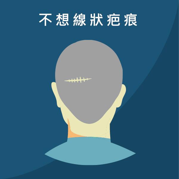 FUE植髮避免線狀疤痕