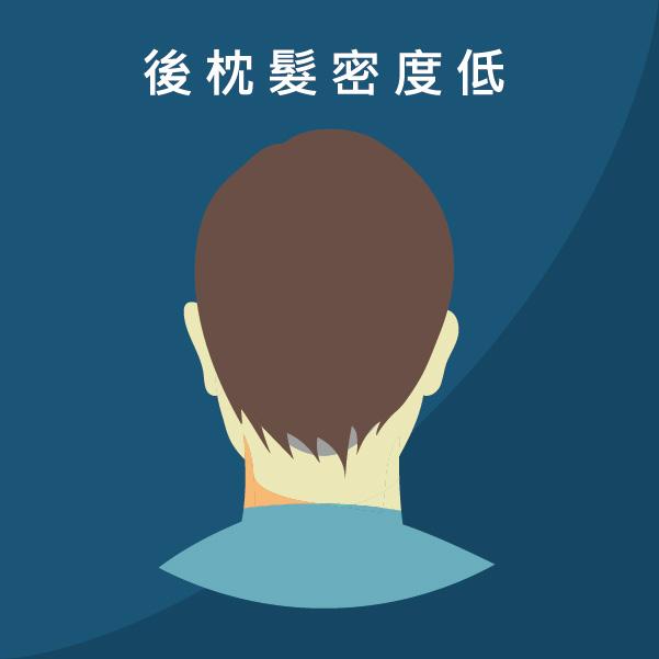 FUT植髮手術後枕部頭髮密度太低