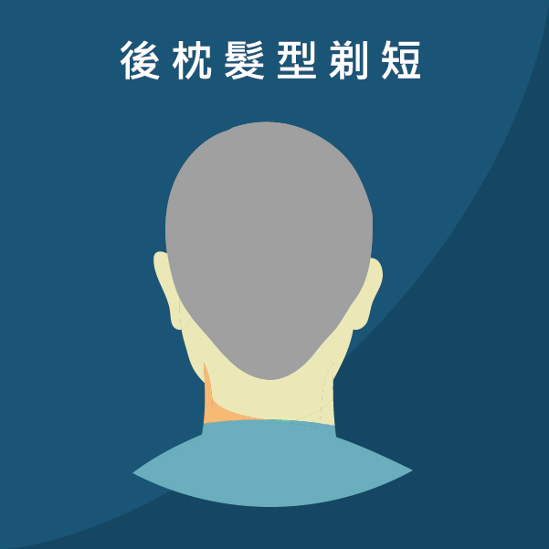 FUT植髮手術的缺點(以後後枕部髮型需要剃短的人)