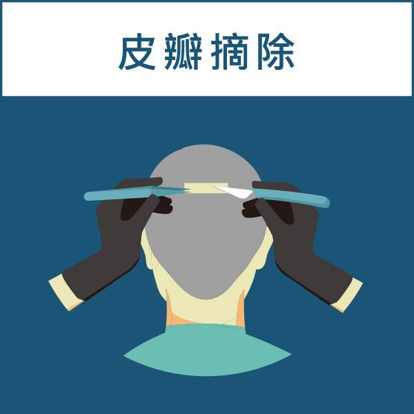 FUT植髮手術過程(取皮瓣)