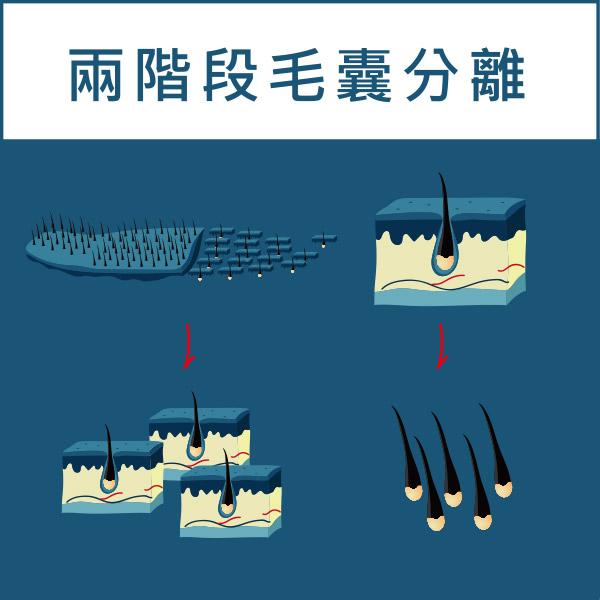 FUT植髮手術過程(兩階段毛囊分離)