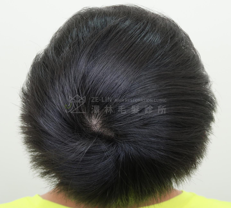 生髮育髮治療PRP自體生長因子注射治療雄性禿術後1