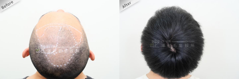 巨量植髮手術案例術前及術後