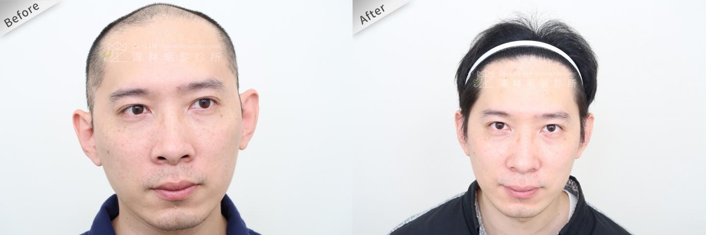 巨量植髮手術案例術前及術後2
