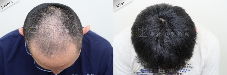 巨量植髮手術案例術前及術後3