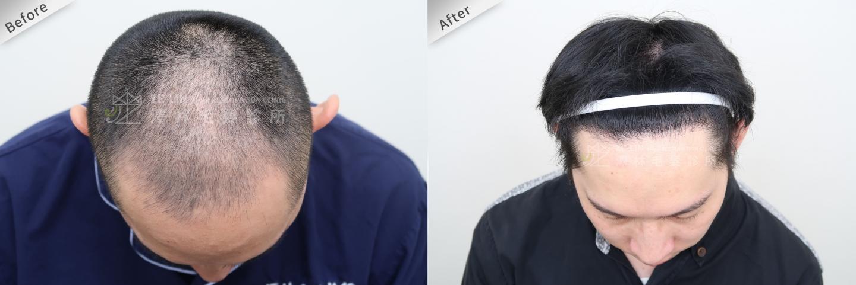 巨量植髮手術案例術前及術後4
