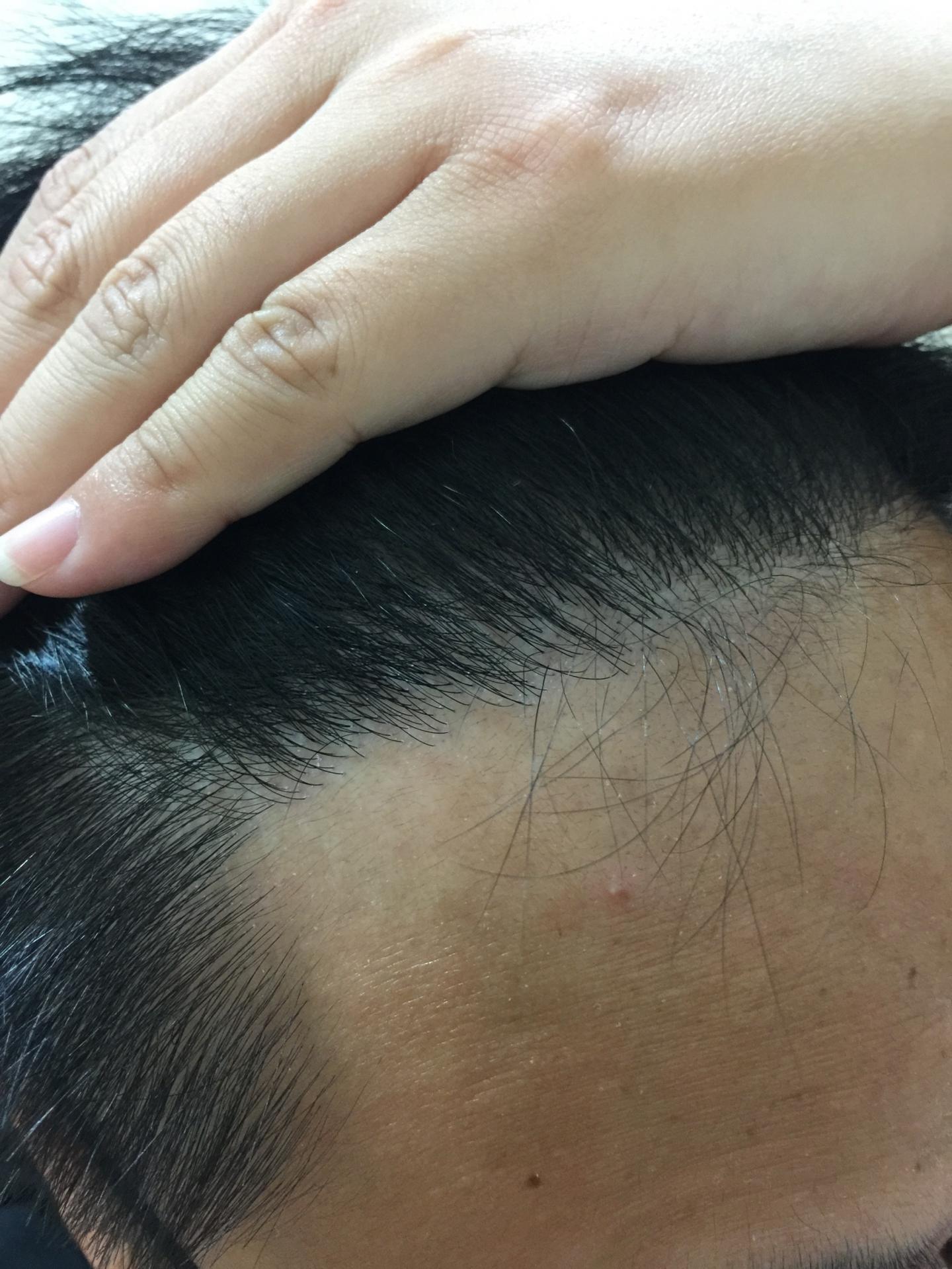 FUE植髮 ptt植髮分享 術後2 髮際線植髮術後近拍