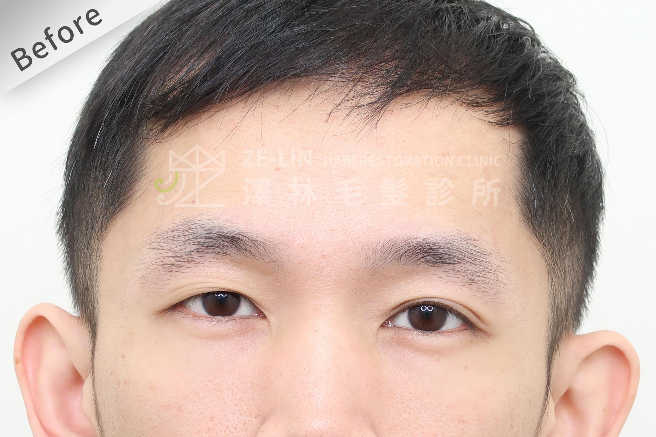 植眉手術改善斷眉術前