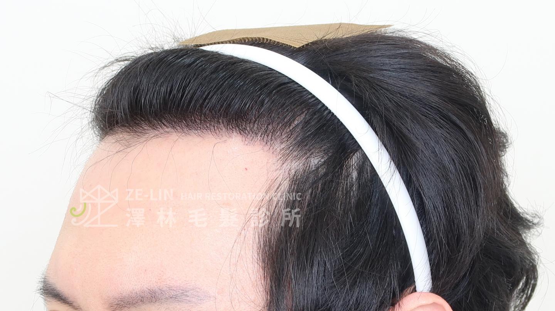 M型禿植髮案例FUE高密度植髮心得推薦-植髮專家澤林毛髮診所謝宗廷醫師-雄性禿治療(柔沛+落健水溶液)-術後5-3