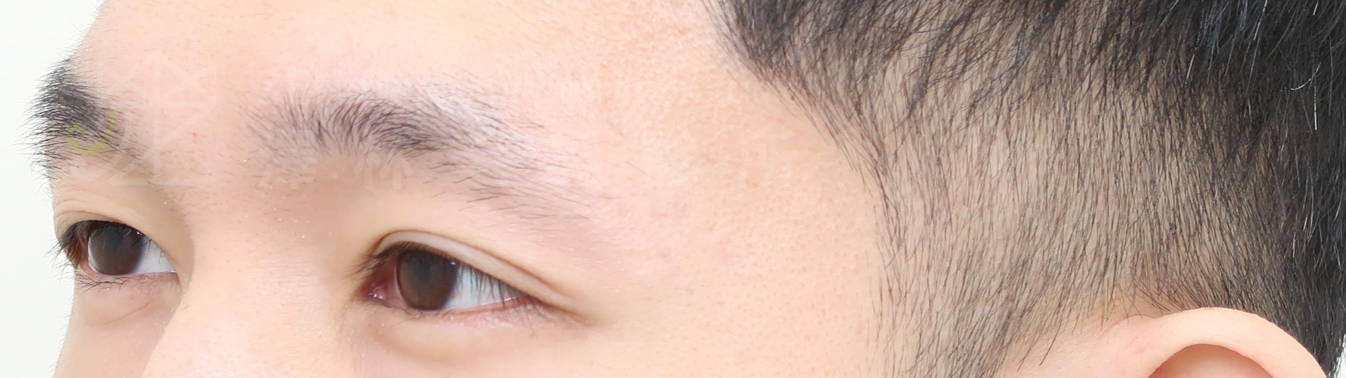 謝宗廷醫師植眉手術改善眉尾稀疏眉毛較短案例術前2