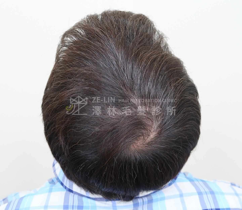 頂部植髮改善頭皮被看見的困擾-術後