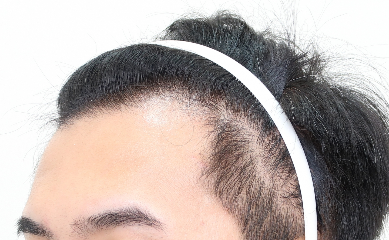 m型禿雄性禿植髮案例效果術前2 合併使用口服藥保護