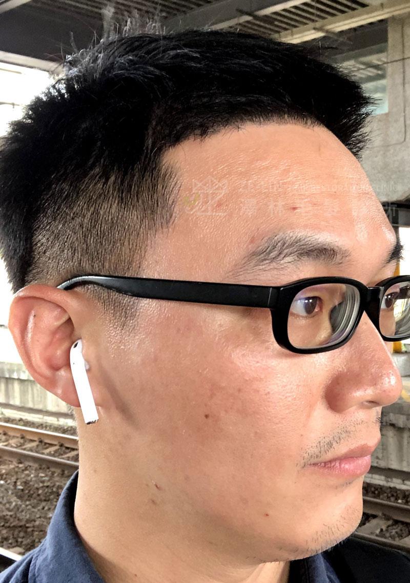 雄性禿植髮術後案例合併口服藥治療1