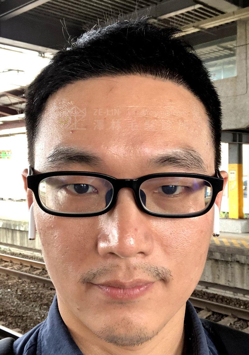 雄性禿植髮術後案例合併口服藥治療2