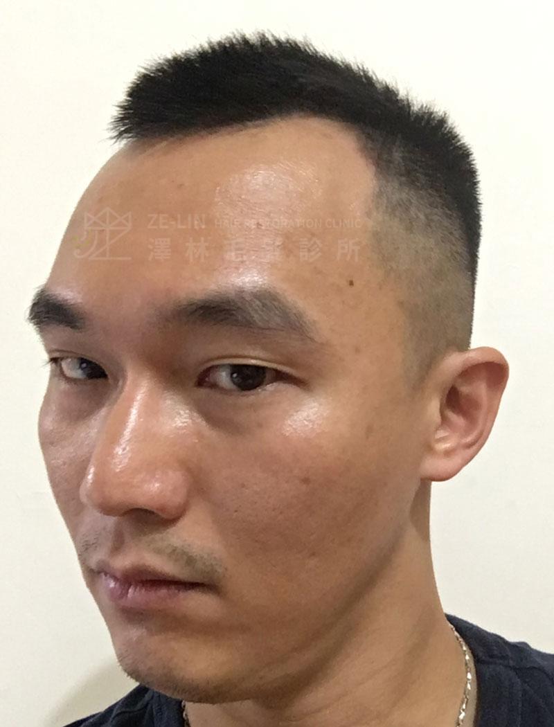 雄性禿植髮術前案例合併口服藥治療2