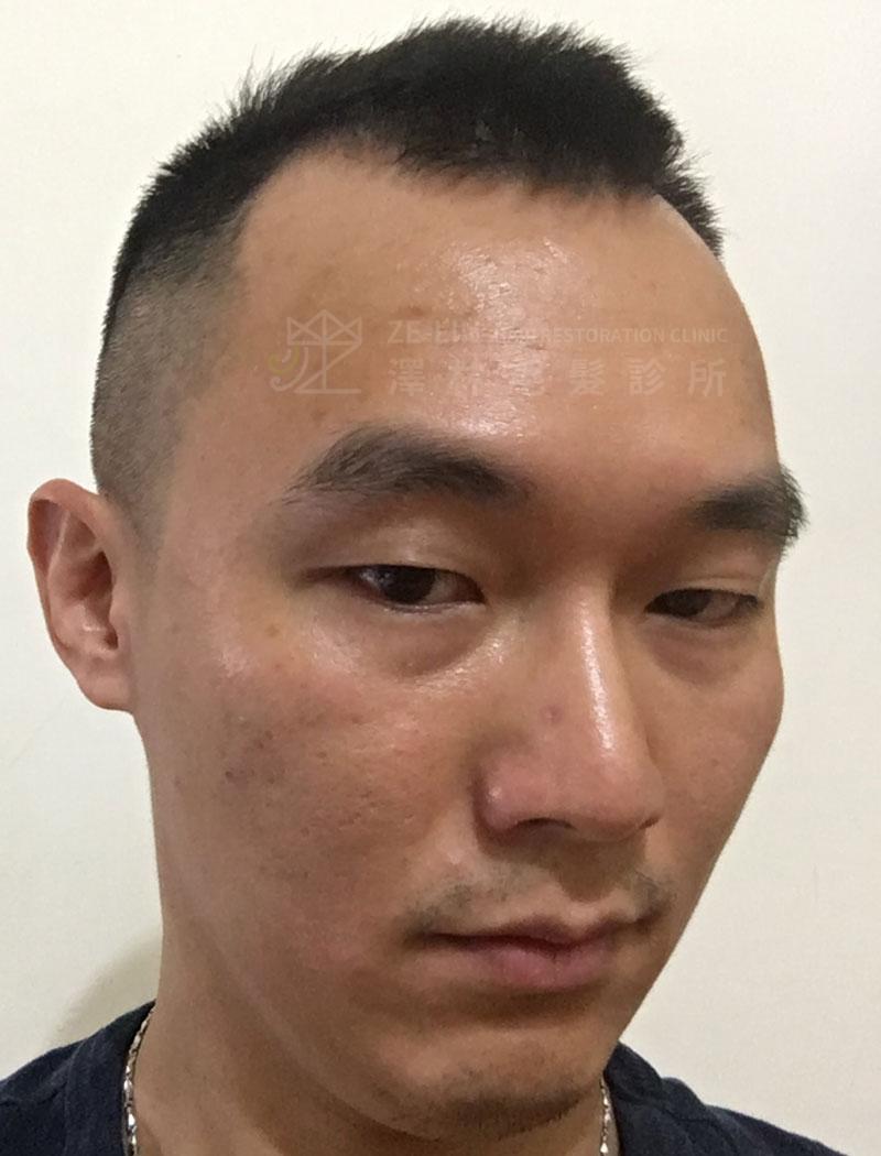 雄性禿植髮術前案例合併口服藥治療1
