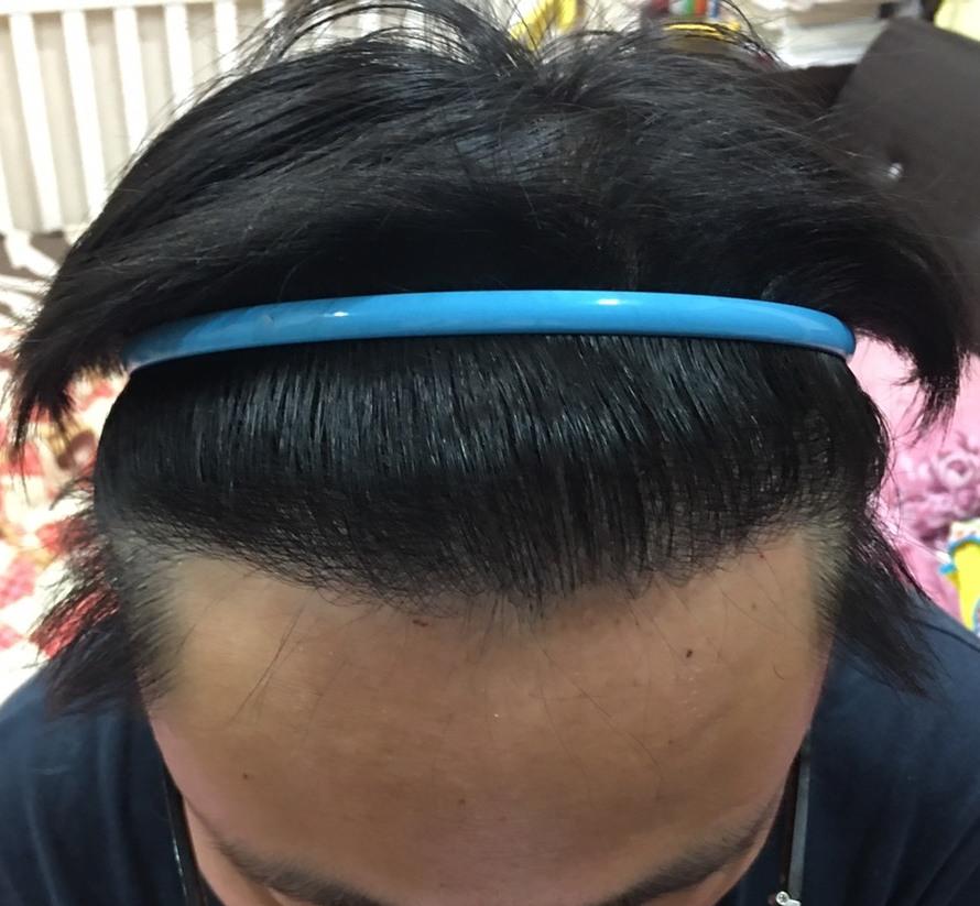 M型禿植髮FUE高密度植髮ptt心得推薦-植髮專家澤林毛髮診所謝宗廷醫師-合併使用柔沛-術後2-1