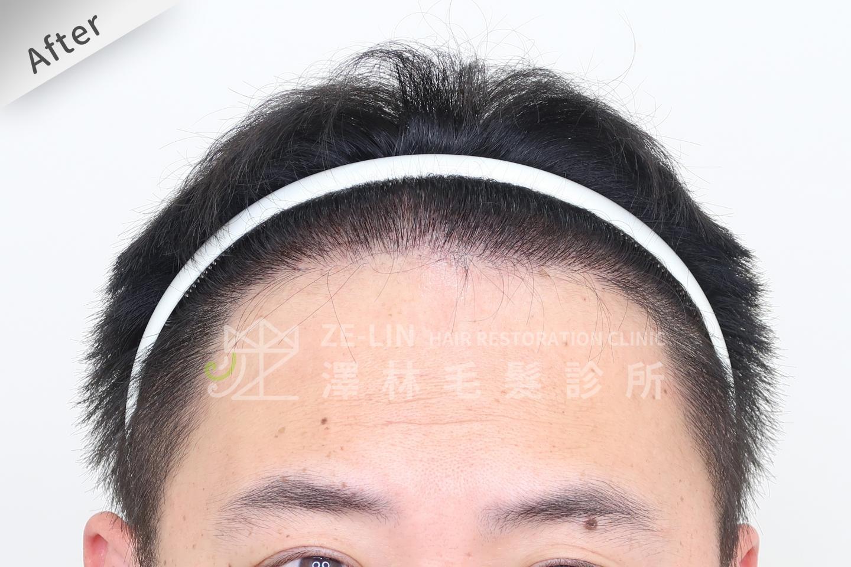 巨量植髮手術後(FUT+FUE植髮手術)