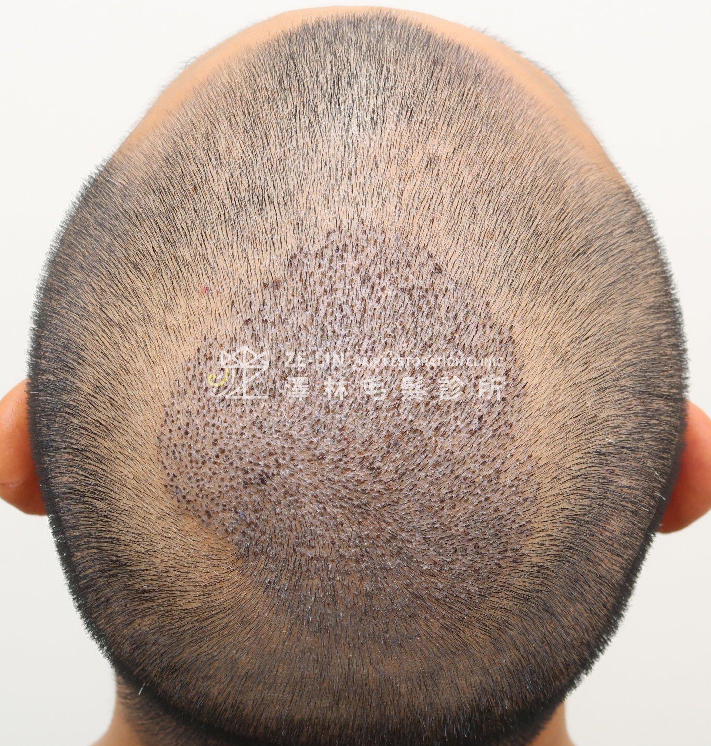 頂部髮旋植髮手術術後