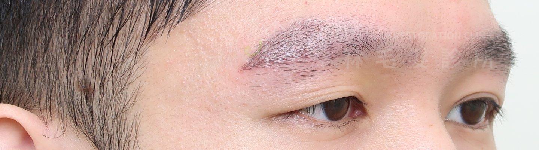 謝宗廷醫師植眉手術改善眉尾稀疏眉毛較短案例術後1