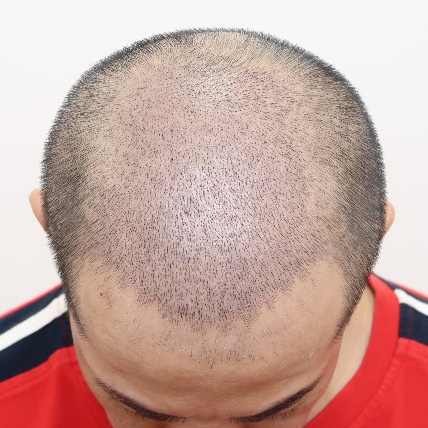 巨量植髮手術後十天(FUE植髮手術)