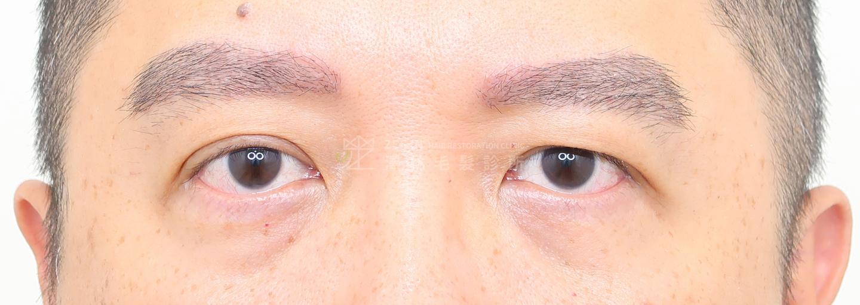 澤林植眉術後