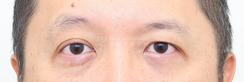 澤林植眉術前