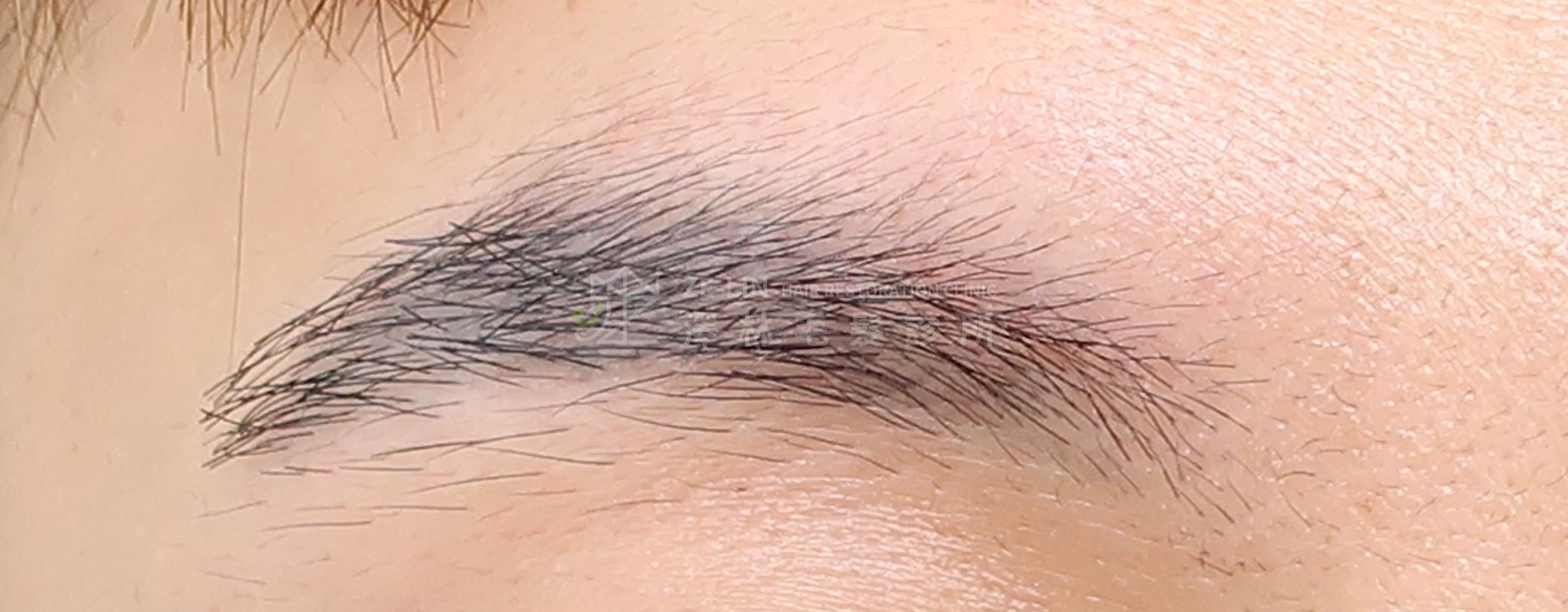 飄眉後接受植眉手術改善眉毛斷尾及眉形術後