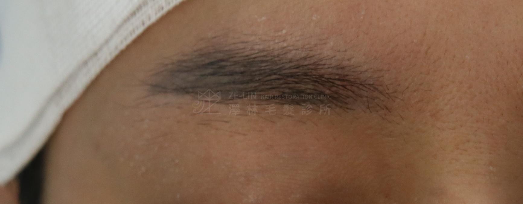 飄眉後接受植眉手術改善眉毛斷尾及眉形術前