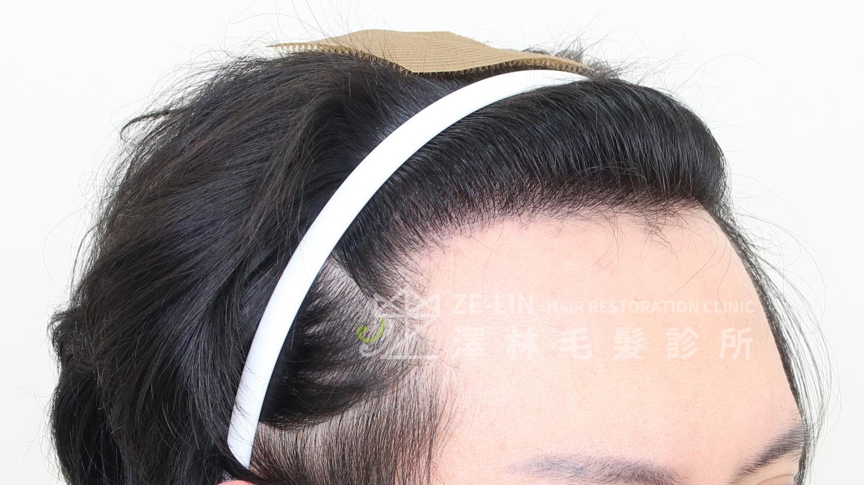 M型禿植髮案例FUE高密度植髮心得推薦-植髮專家澤林毛髮診所謝宗廷醫師-雄性禿治療(柔沛+落健水溶液)-術後5-2