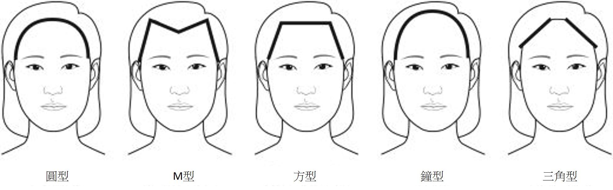 女性植髮修飾額頭形狀