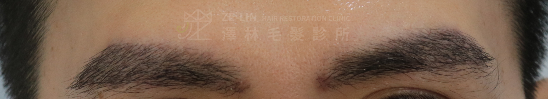 謝宗廷醫師用植眉手術改善眉尾下垂術後