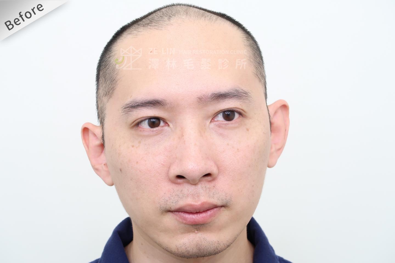 巨量植髮手術前(FUE植髮手術)