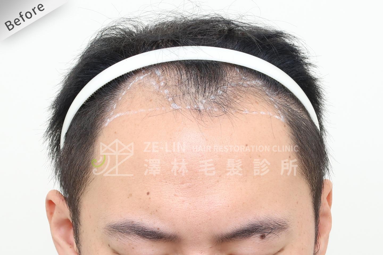 巨量植髮手術前(FUT+FUE植髮手術)