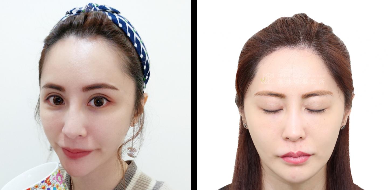 免剃髮植髮改善額角髮線困擾